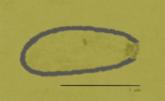 西伯利亞闊口罐病毒」 (Pithovirus sibericum)