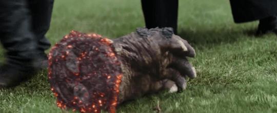 黑曜獵手在《無限之戰》中被砍斷手